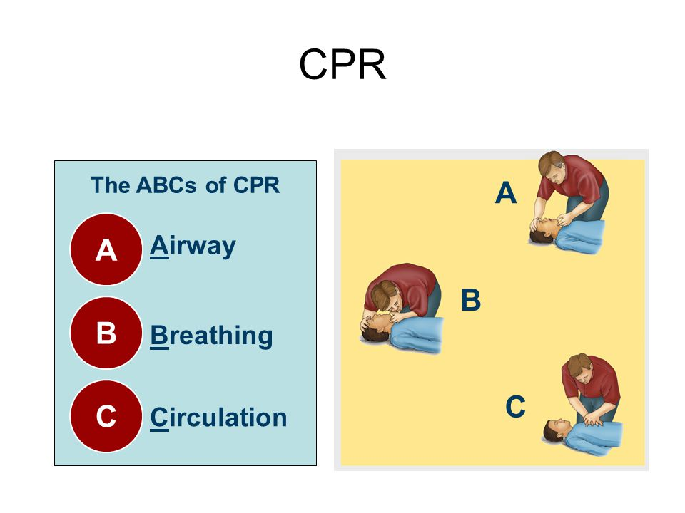 CPR The ABCs of CPR A B C Airway Breathing Circulation A B C