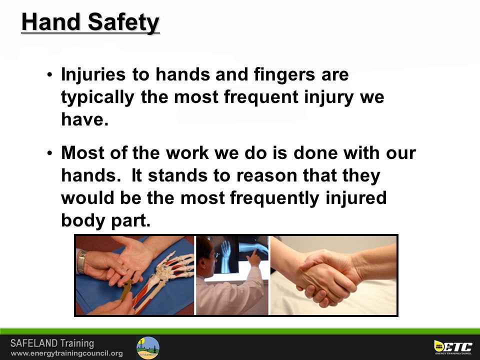 Injuries to hands and fingers are typically the most frequent injury we have.