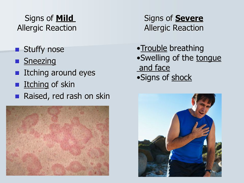 Signs of Mild Signs of Severe Allergic Reaction Allergic Reaction Signs of Mild Signs of Severe Allergic Reaction Allergic Reaction Stuffy nose Stuffy nose Sneezing Sneezing Itching around eyes Itching around eyes Itching of skin Itching of skin Raised, red rash on skin Raised, red rash on skin Trouble breathing Swelling of the tongue and face Signs of shock