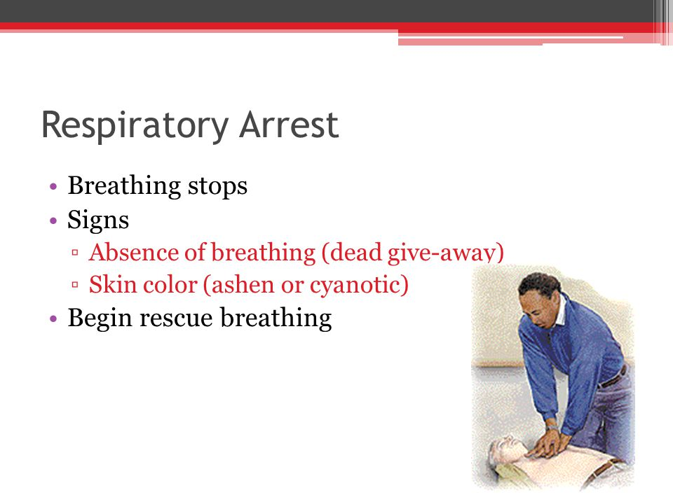 Breathing stops Signs ▫Absence of breathing (dead give-away) ▫Skin color (ashen or cyanotic) Begin rescue breathing Respiratory Arrest