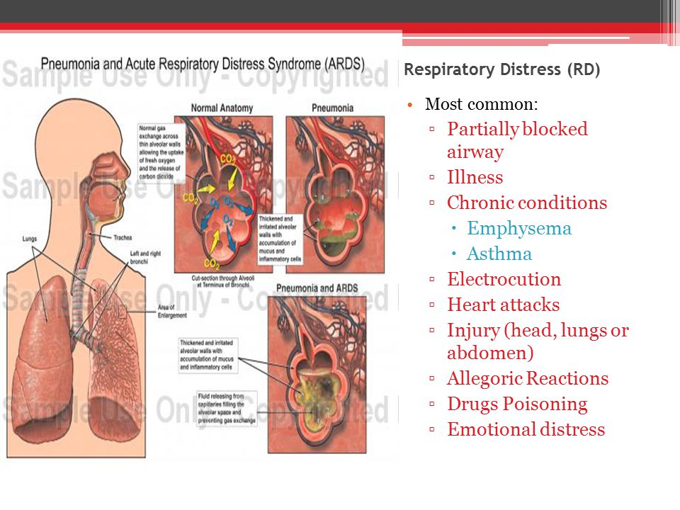 Respiratory Distress (RD) Most common: ▫Partially blocked airway ▫Illness ▫Chronic conditions  Emphysema  Asthma ▫Electrocution ▫Heart attacks ▫Injury (head, lungs or abdomen) ▫Allegoric Reactions ▫Drugs Poisoning ▫Emotional distress