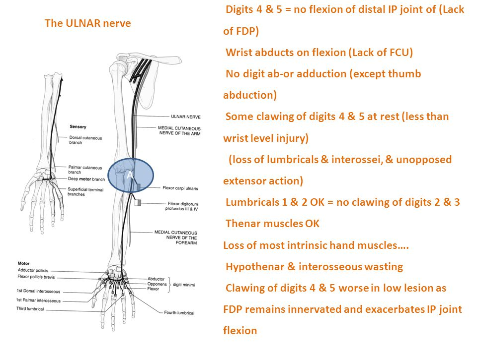 A Digits 4 & 5 = no flexion of distal IP joint of (Lack of FDP) Wrist abducts on flexion (Lack of FCU) No digit ab-or adduction (except thumb abductio