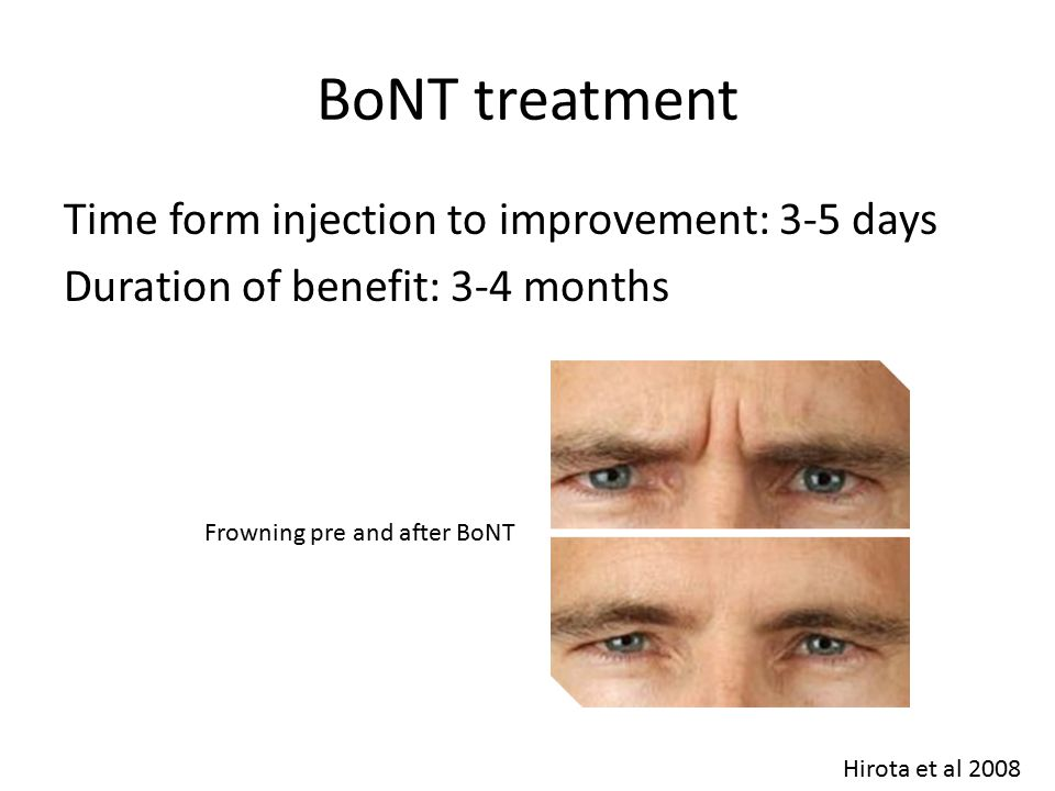 BoNT treatment Time form injection to improvement: 3-5 days Duration of benefit: 3-4 months Frowning pre and after BoNT Hirota et al 2008