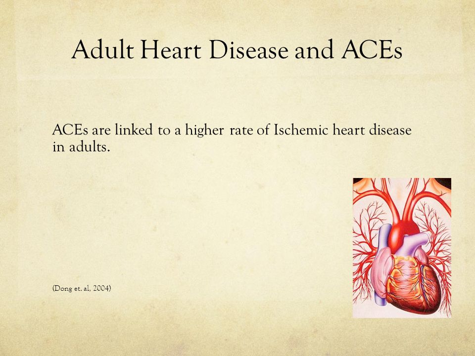Adult Heart Disease and ACEs ACEs are linked to a higher rate of Ischemic heart disease in adults.
