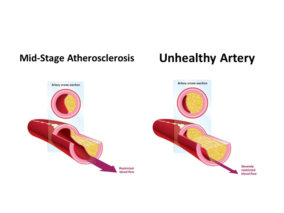 Mid-Stage Atherosclerosis Unhealthy Artery