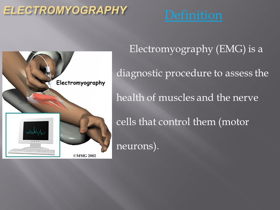 ELECTROMYOGRAPHY Definition Electromyography (EMG) is a diagnostic procedure to assess the health of muscles and the nerve cells that control them (motor neurons).