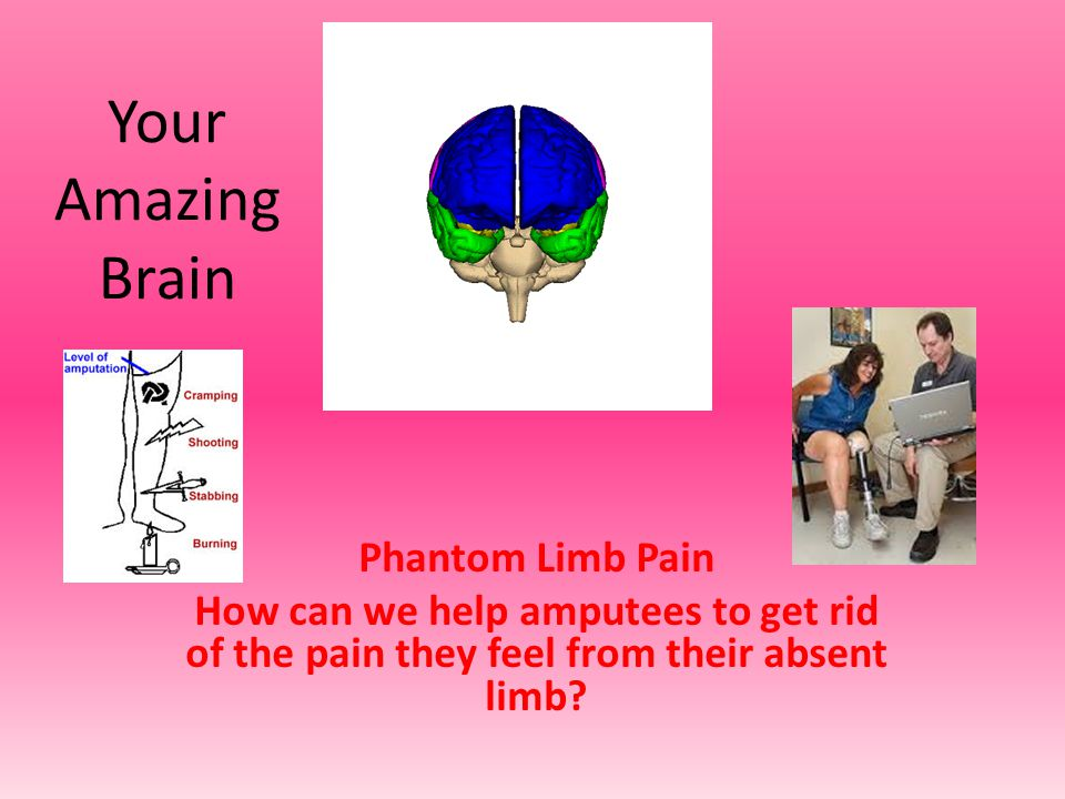 Thanks to Dr V Ramachandran.A cheap and effective therapy for PLP, which almost always works.