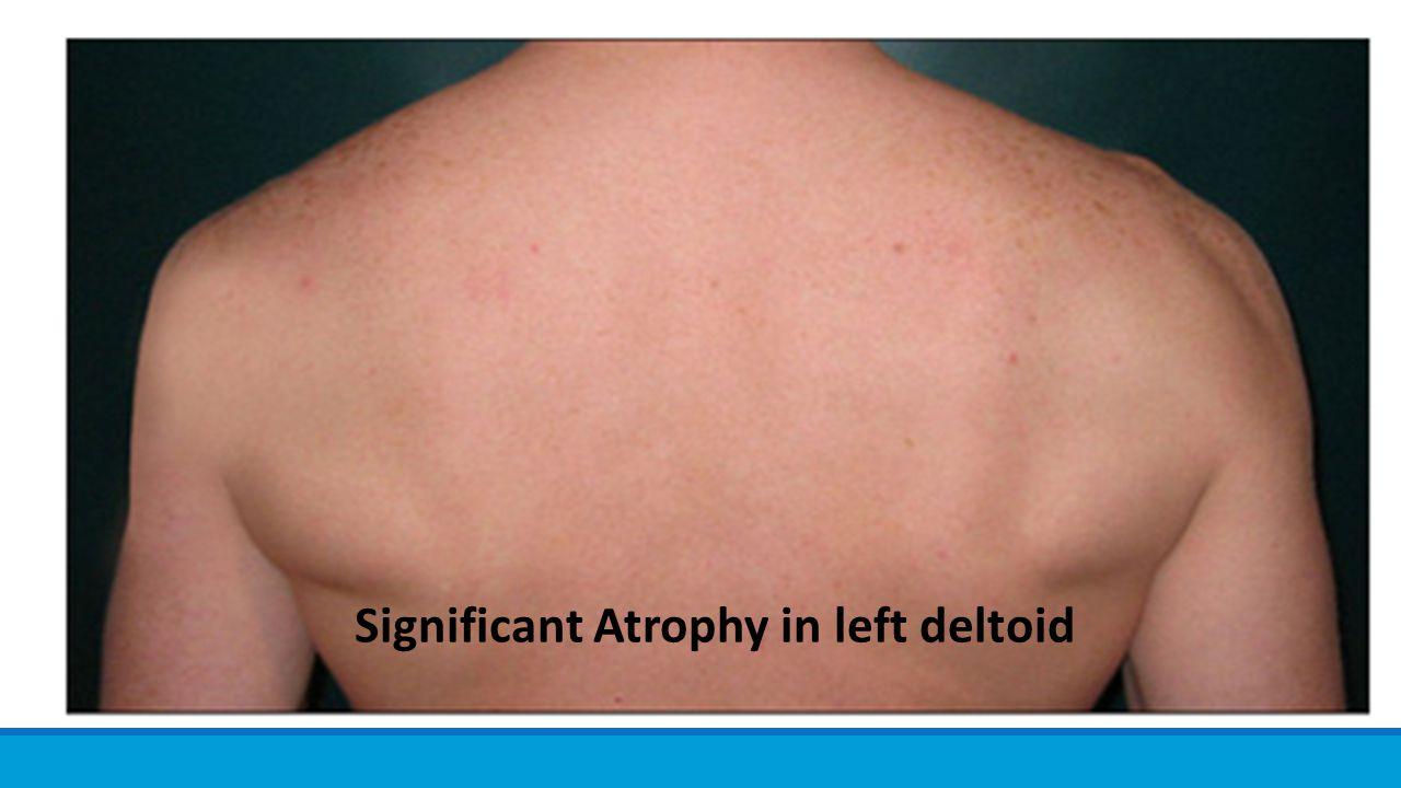 Significant Atrophy in left deltoid