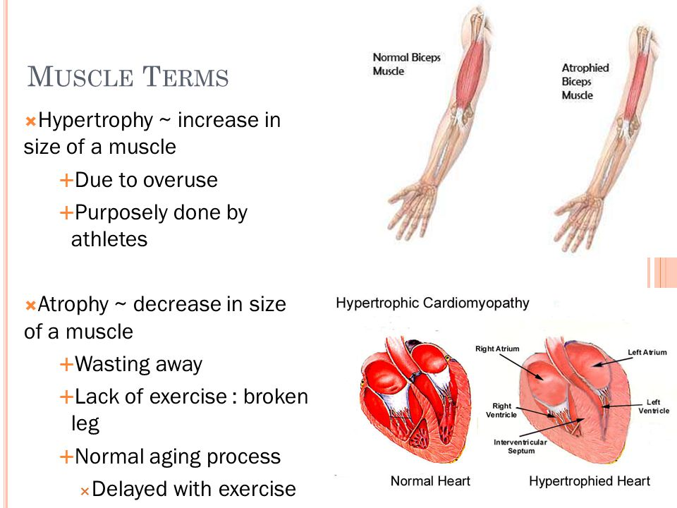 M USCLE T ERMS  Hypertrophy ~ increase in size of a muscle  Due to overuse  Purposely done by athletes  Atrophy ~ decrease in size of a muscle  W