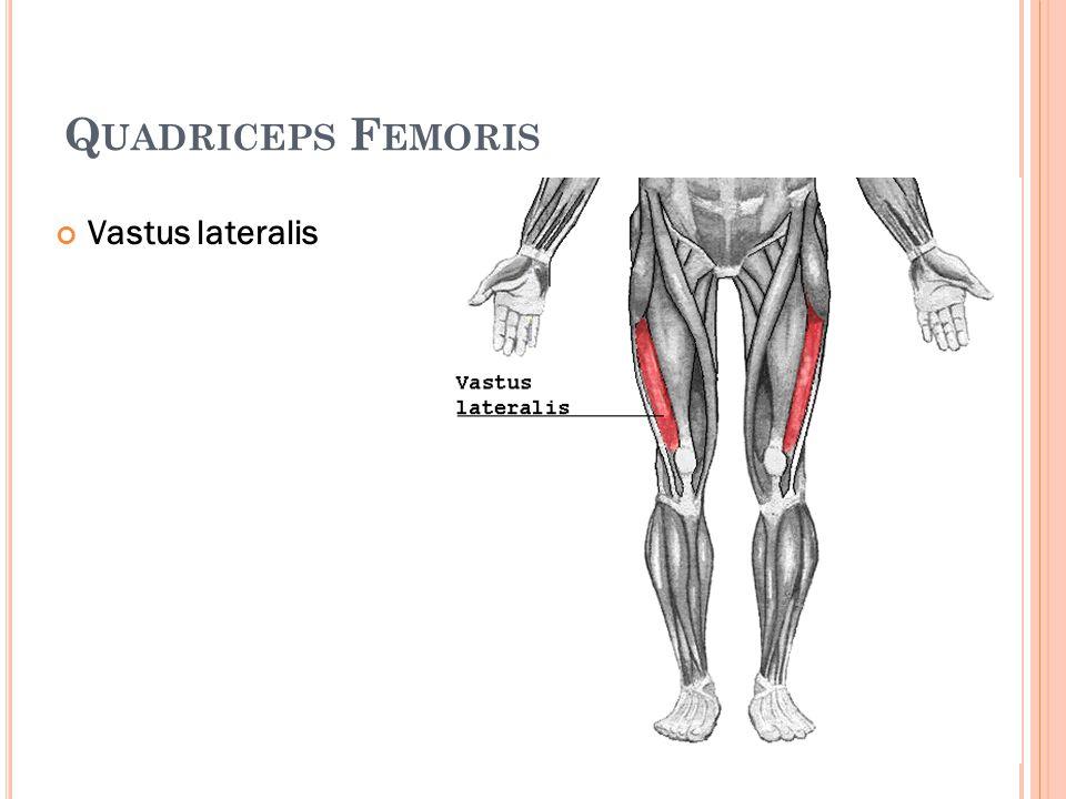 Q UADRICEPS F EMORIS Vastus lateralis
