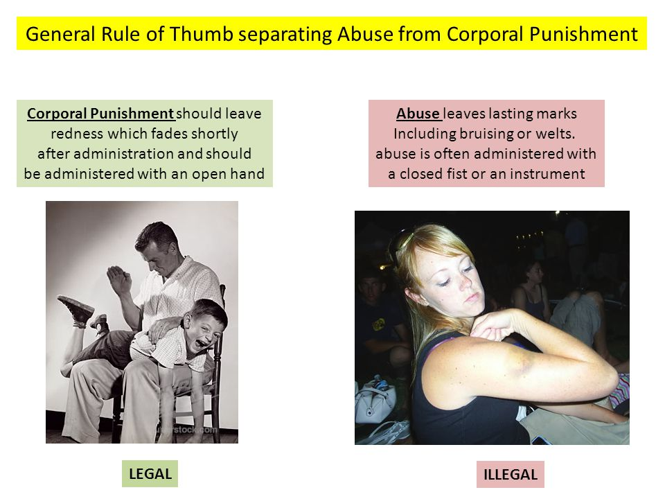 General Rule of Thumb separating Abuse from Corporal Punishment Corporal Punishment should leave redness which fades shortly after administration and