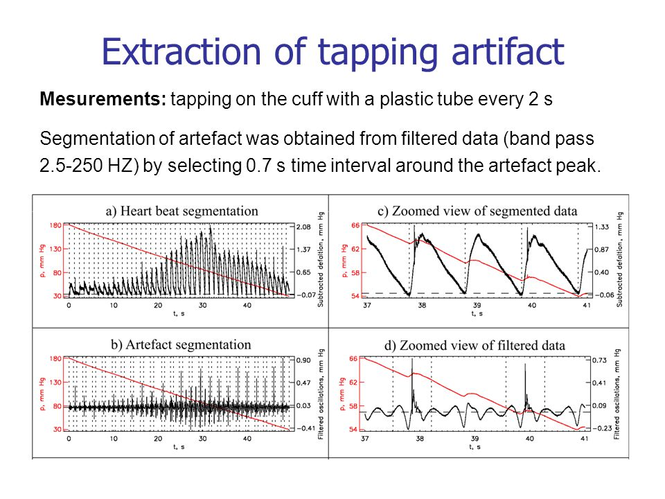 Mesurements: tapping on the cuff with a plastic tube every 2 s Segmentation of artefact was obtained from filtered data (band pass 2.5-250 HZ) by selecting 0.7 s time interval around the artefact peak.