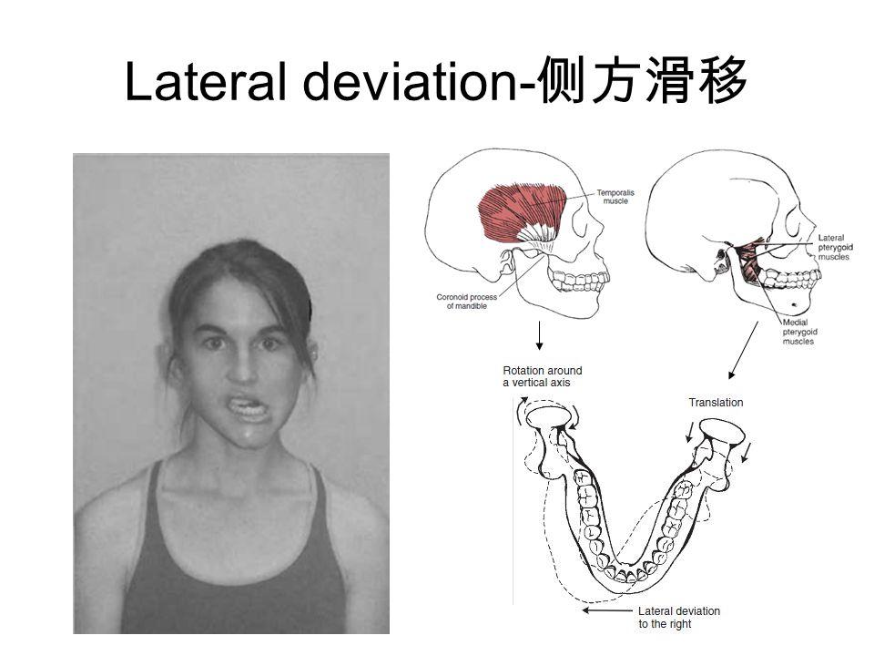 Lateral deviation- 侧方滑移