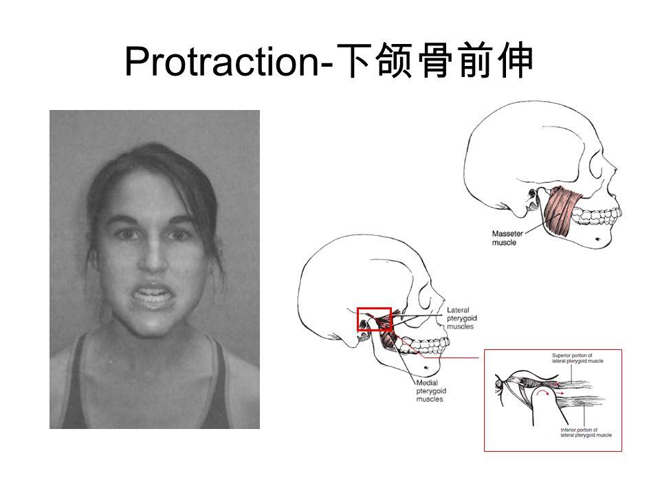 Protraction- 下颌骨前伸