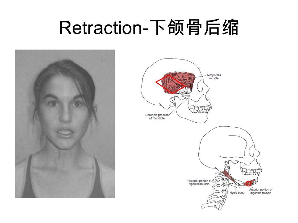 Retraction- 下颌骨后缩