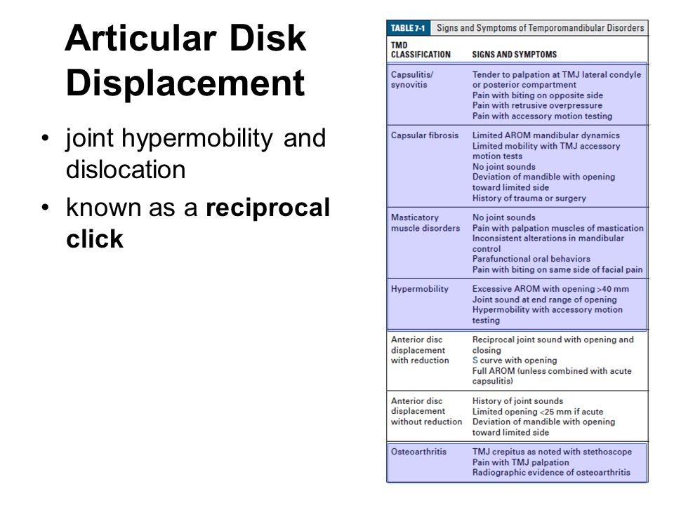 Articular Disk Displacement joint hypermobility and dislocation known as a reciprocal click