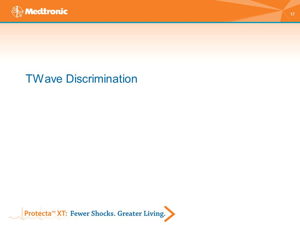 17 TWave Discrimination