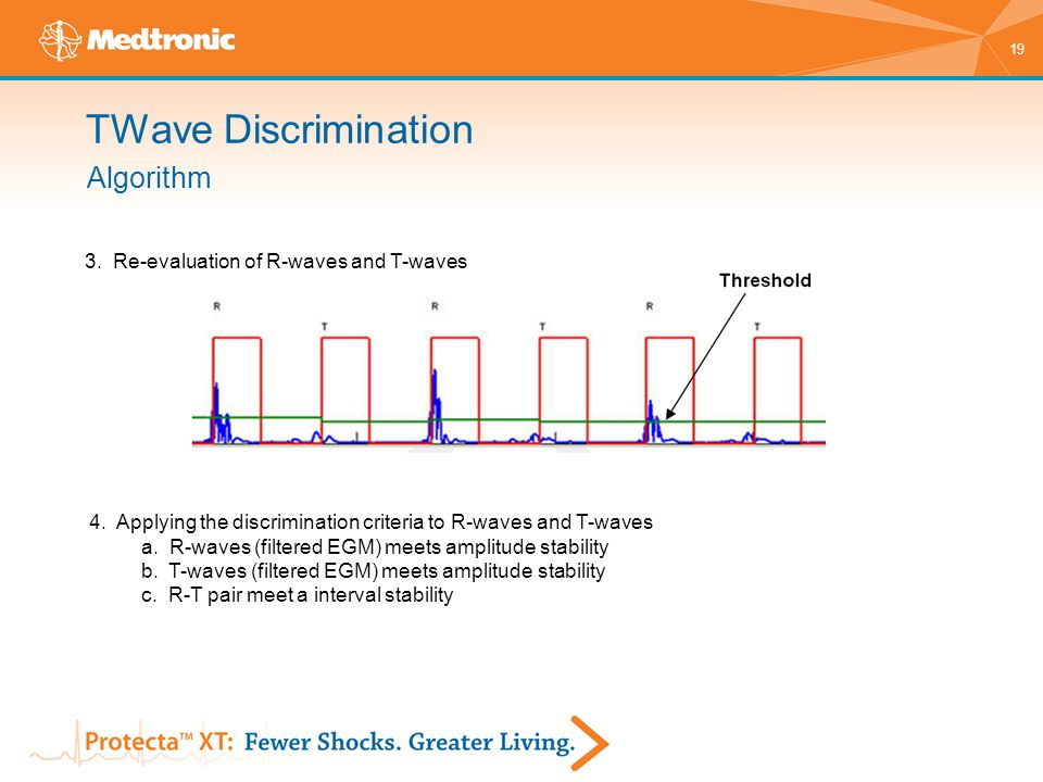 19 3. Re-evaluation of R-waves and T-waves 4. Applying the discrimination criteria to R-waves and T-waves a. R-waves (filtered EGM) meets amplitude st