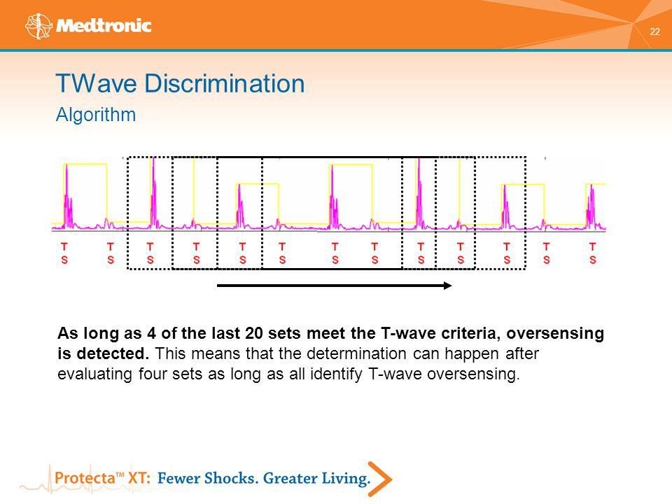 22 As long as 4 of the last 20 sets meet the T-wave criteria, oversensing is detected. This means that the determination can happen after evaluating f
