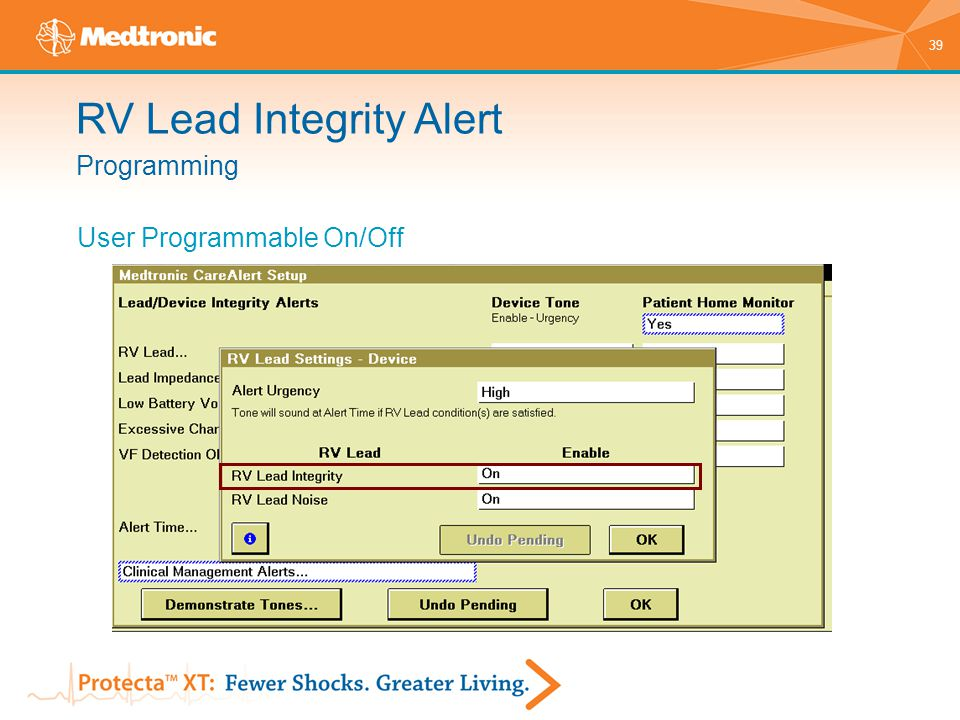 39 Programming RV Lead Integrity Alert User Programmable On/Off