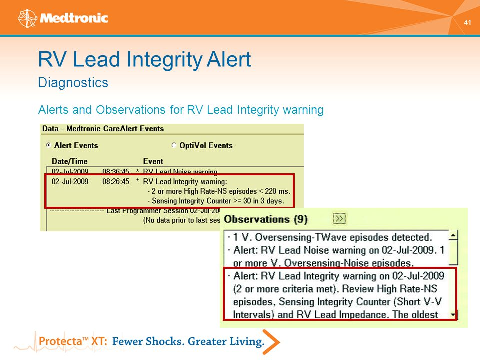 41 Diagnostics Alerts and Observations for RV Lead Integrity warning RV Lead Integrity Alert