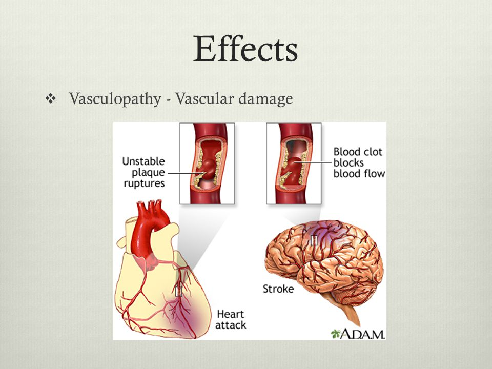 Effects  Vasculopathy - Vascular damage