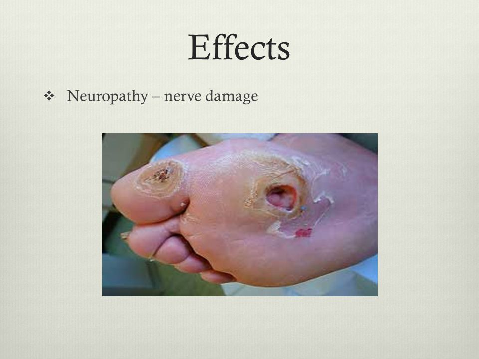 Effects  Neuropathy – nerve damage