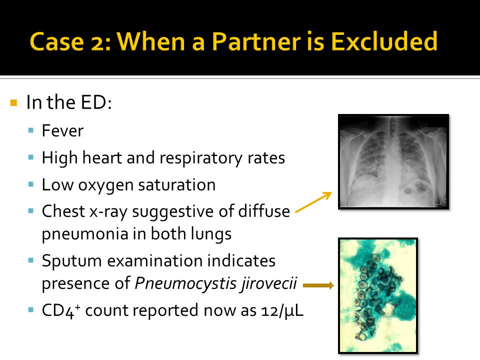  In the ED:  Fever  High heart and respiratory rates  Low oxygen saturation  Chest x-ray suggestive of diffuse pneumonia in both lungs  Sputum e