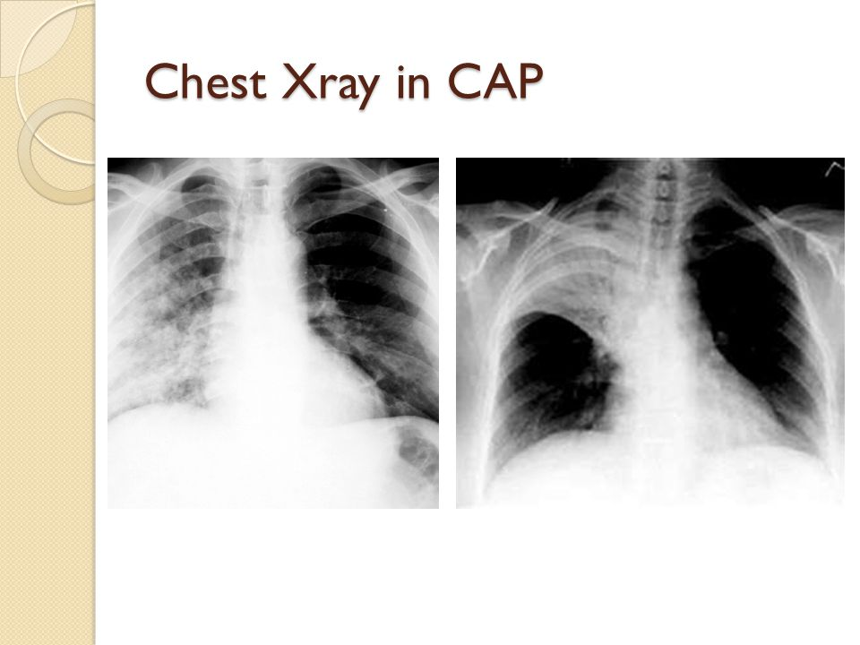 Chest Xray in CAP