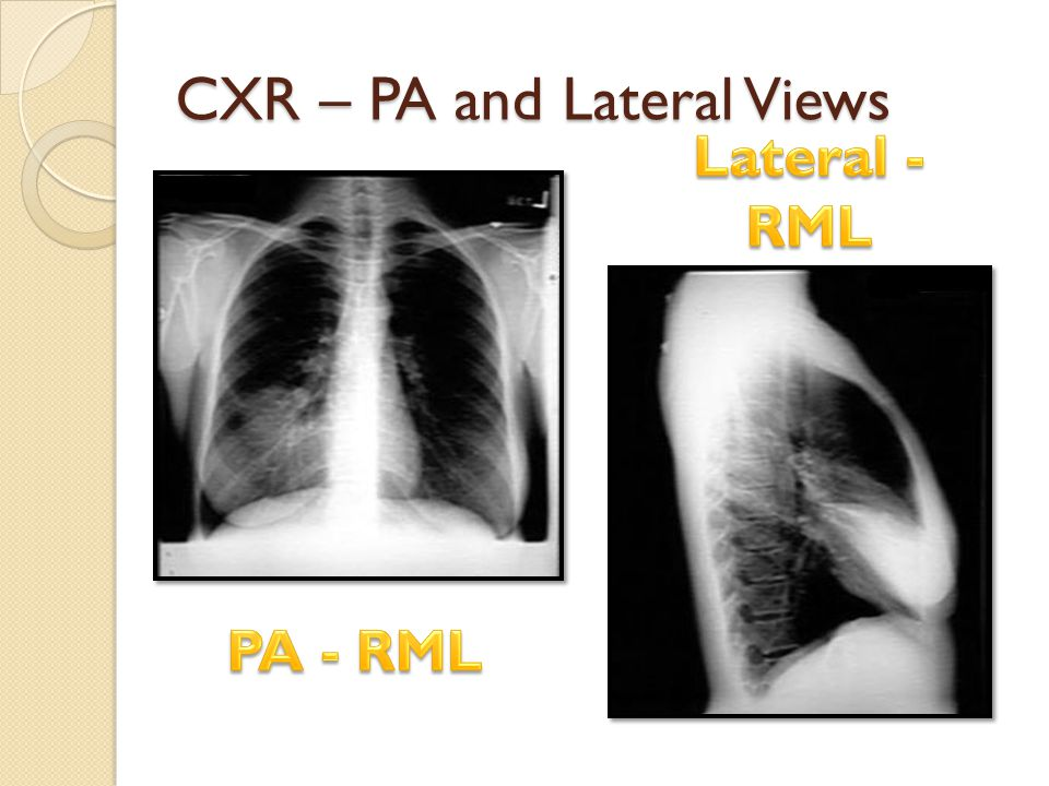 CXR – PA and Lateral Views