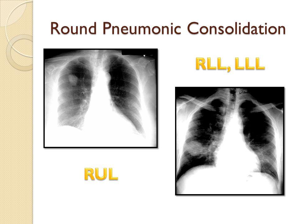 Round Pneumonic Consolidation
