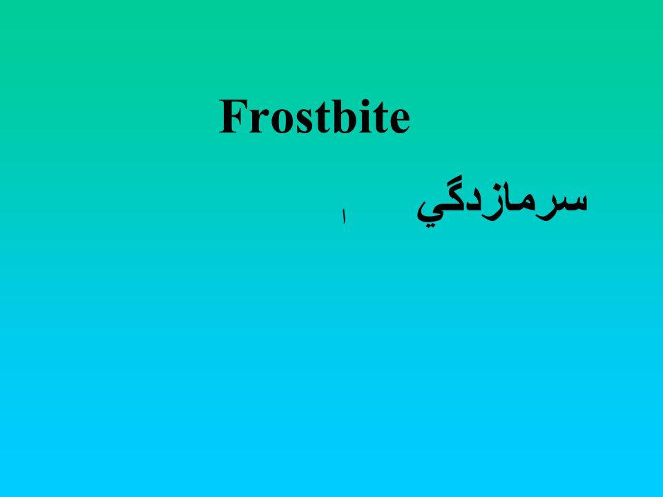 Frostbite سرمازدگي ا