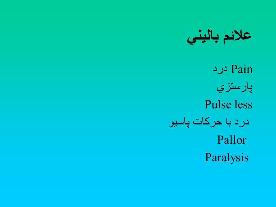 علائم باليني درد Pain پارستزي Pulse less درد با حركات پاسيو Pallor Paralysis