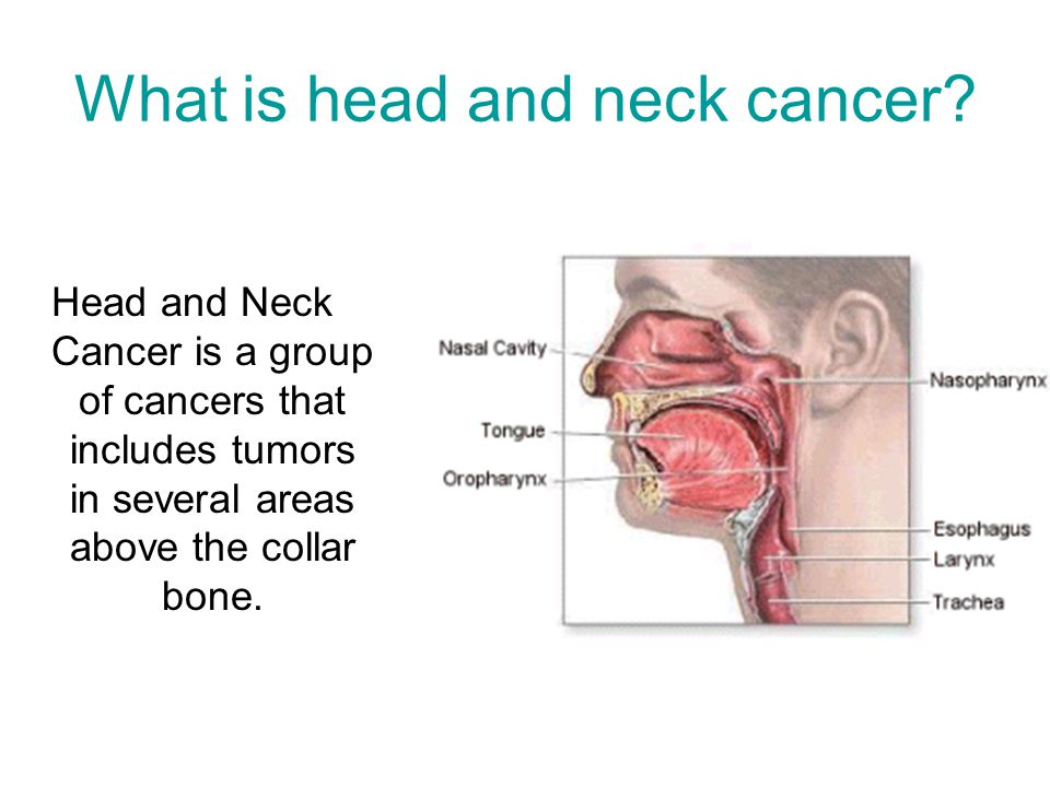 What is head and neck cancer.