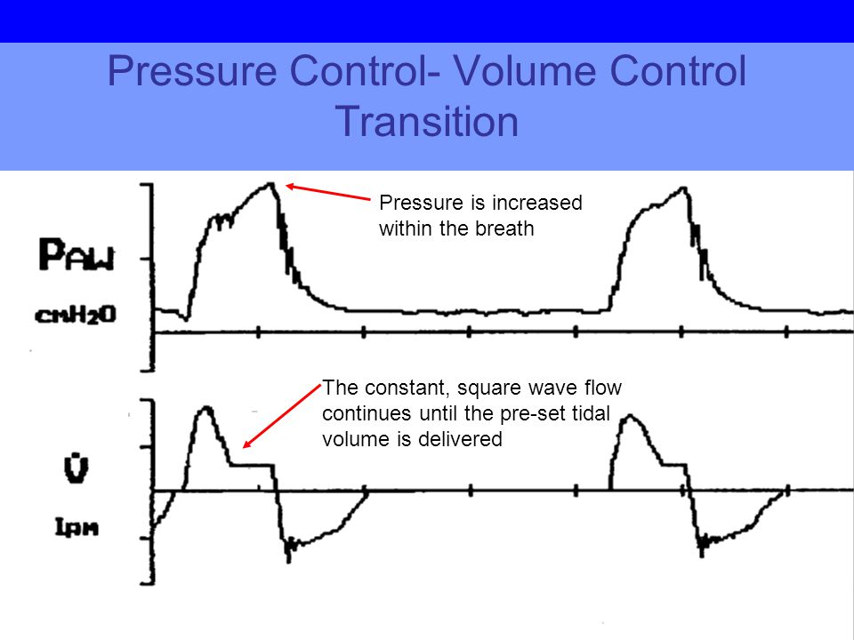 Pressure Control- Volume Control Transition The constant, square wave flow continues until the pre-set tidal volume is delivered Pressure is increased