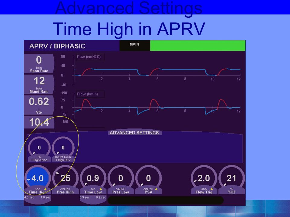 Advanced Settings Time High in APRV