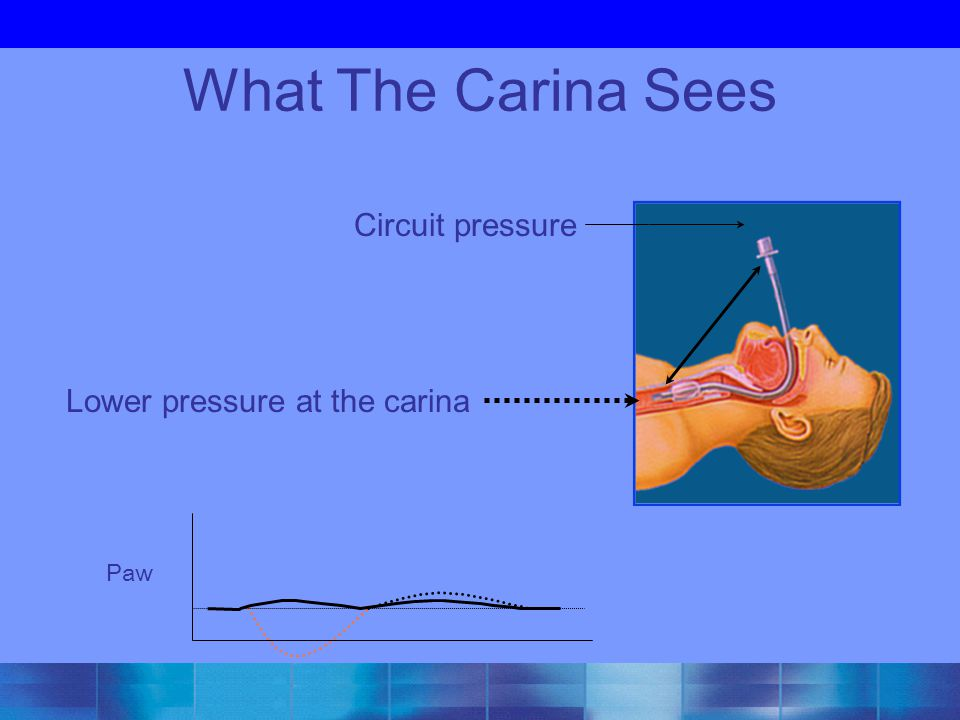What The Carina Sees Circuit pressure Lower pressure at the carina Paw