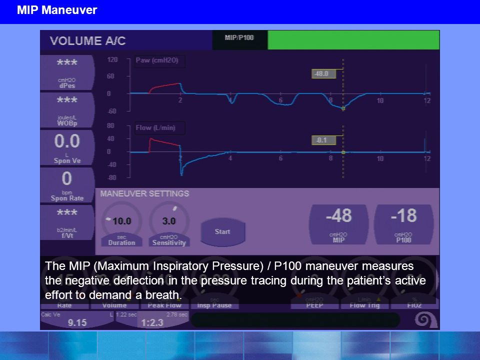 MIP Maneuver The MIP (Maximum Inspiratory Pressure) / P100 maneuver measures the negative deflection in the pressure tracing during the patient's acti