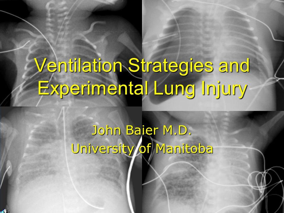 John Baier M.D. University of Manitoba Ventilation Strategies and Experimental Lung Injury