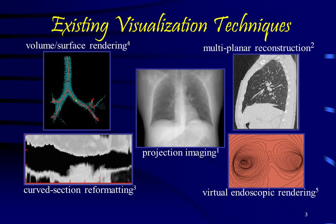 3 Existing Visualization Techniques projection imaging 1 curved-section reformatting 3 volume/surface rendering 4 multi-planar reconstruction 2 virtual endoscopic rendering 5