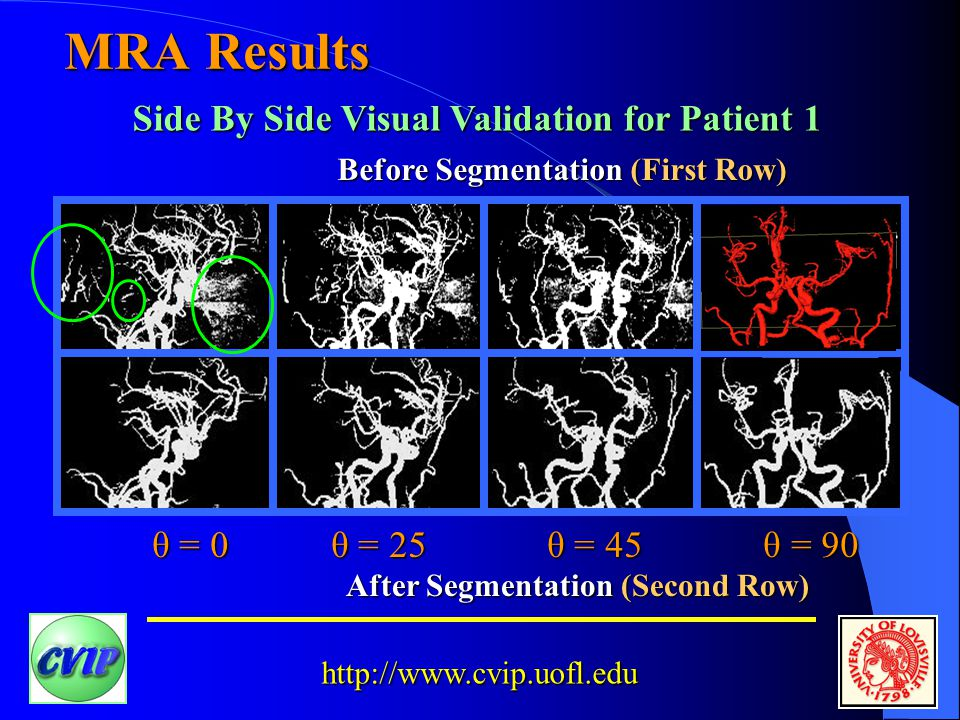http://www.cvip.uofl.edu MRA Results After Segmentation (Second Row) Before Segmentation (First Row) Side By Side Visual Validation for Patient 1 θ = 0 θ = 25 θ = 45 θ = 90 θ = 0 θ = 25 θ = 45 θ = 90