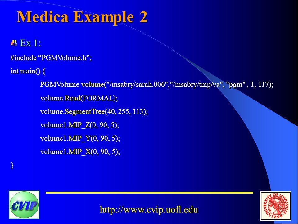 http://www.cvip.uofl.edu Medica Example 2 Ex 1: Ex 1: #include PGMVolume.h ; int main() { PGMVolume volume( /msabry/sarah.006 , /msabry/tmp/va , pgm , 1, 117); volume.Read(FORMAL); volume.SegmentTree(40, 255, 113); volume1.MIP_Z(0, 90, 5); volume1.MIP_Y(0, 90, 5); volume1.MIP_X(0, 90, 5); }