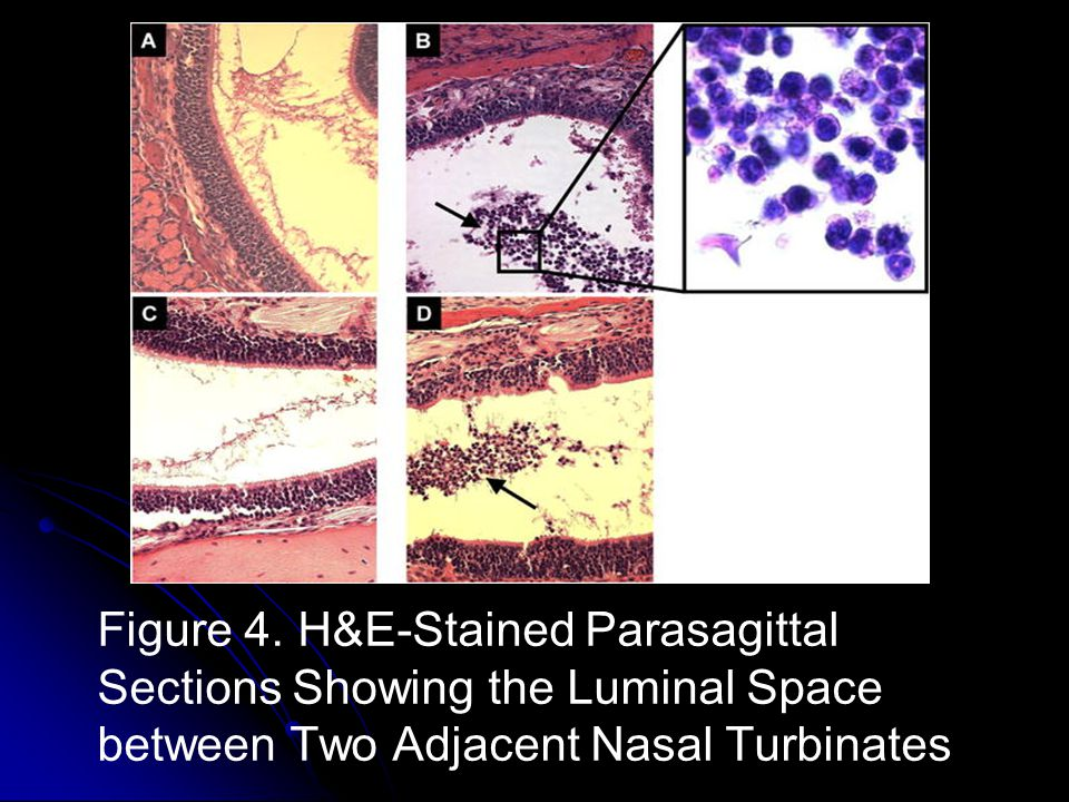 Figure 4. H&E-Stained Parasagittal Sections Showing the Luminal Space between Two Adjacent Nasal Turbinates
