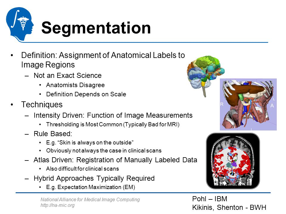 National Alliance for Medical Image Computing http://na-mic.org Segmentation Definition: Assignment of Anatomical Labels to Image Regions –Not an Exac