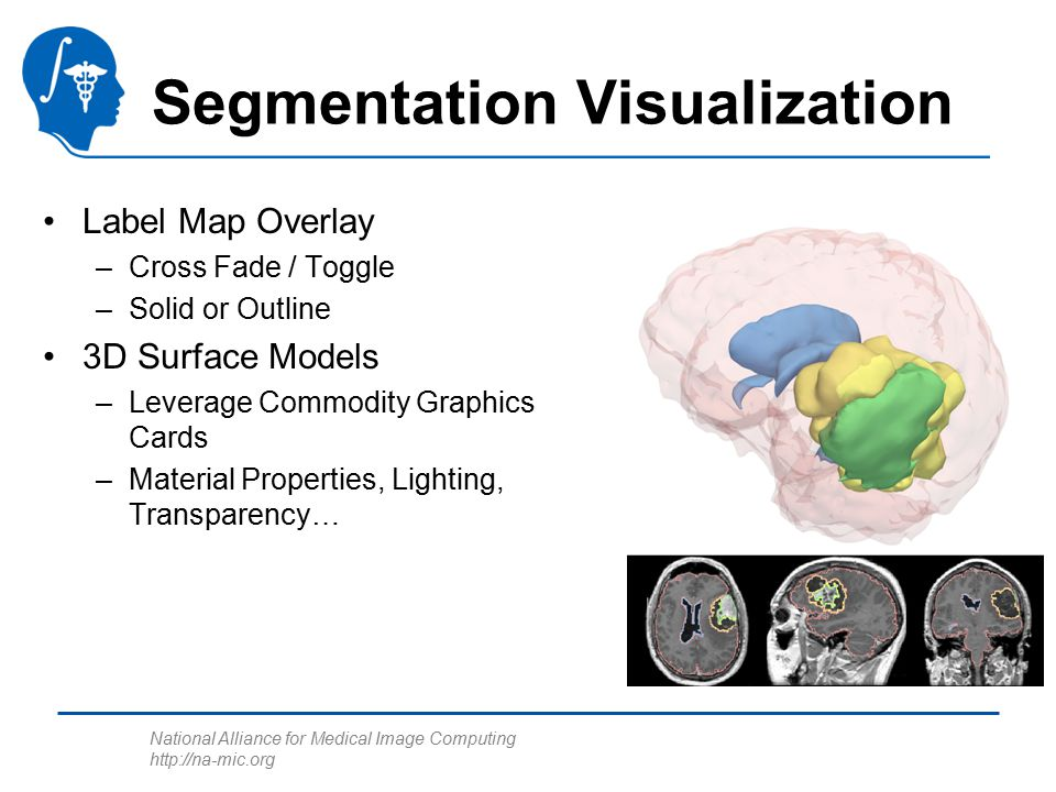 National Alliance for Medical Image Computing http://na-mic.org Segmentation Visualization Label Map Overlay –Cross Fade / Toggle –Solid or Outline 3D