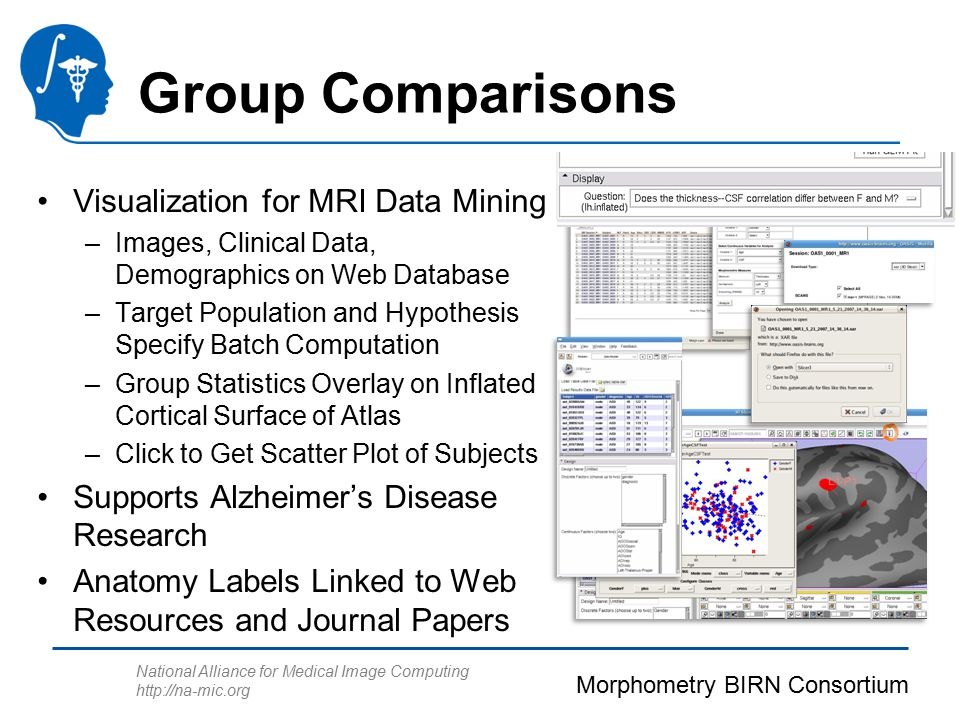 National Alliance for Medical Image Computing http://na-mic.org Group Comparisons Visualization for MRI Data Mining –Images, Clinical Data, Demographi