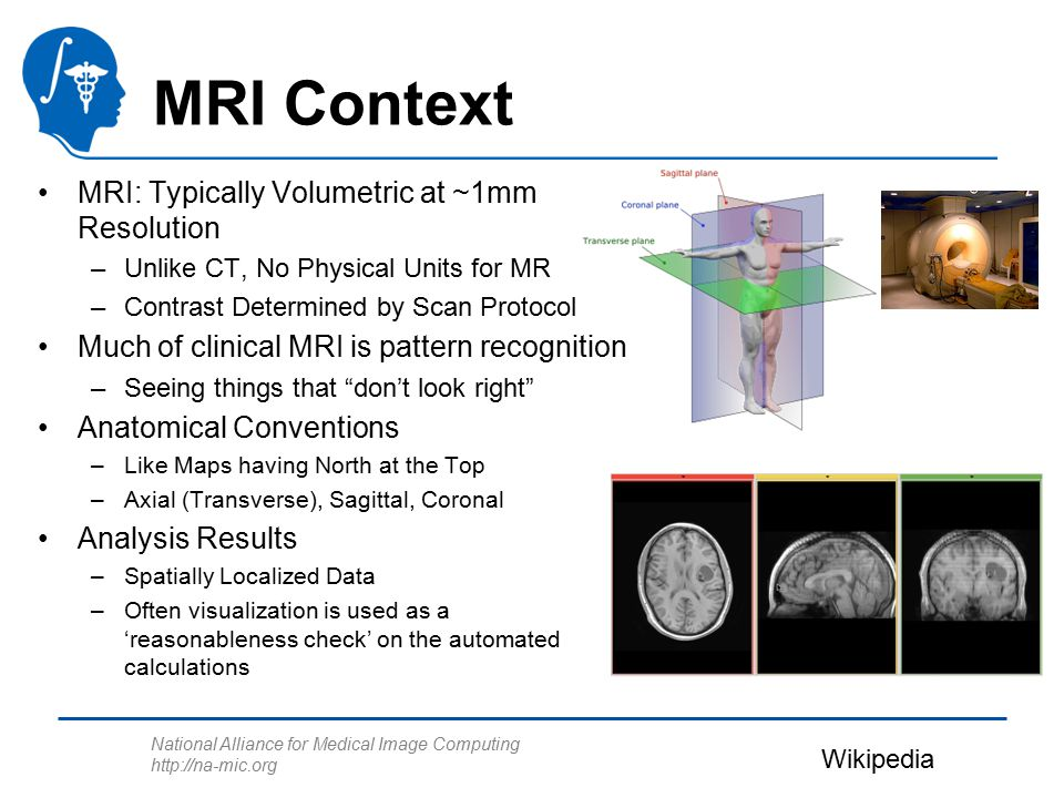 National Alliance for Medical Image Computing http://na-mic.org MRI Context MRI: Typically Volumetric at ~1mm Resolution –Unlike CT, No Physical Units