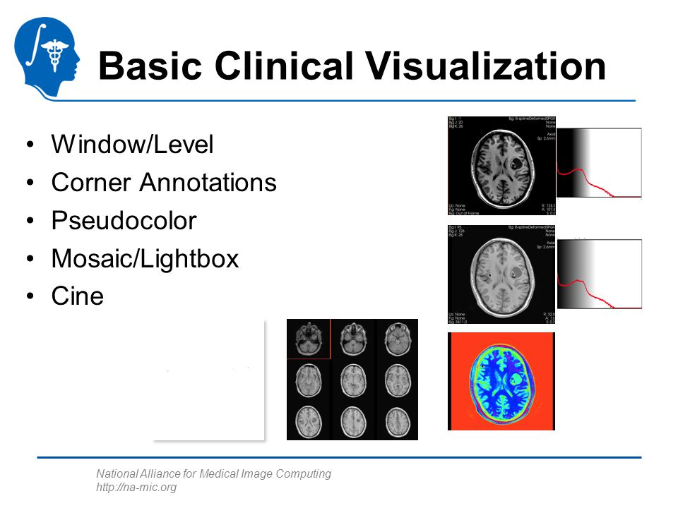 National Alliance for Medical Image Computing http://na-mic.org Basic Clinical Visualization Window/Level Corner Annotations Pseudocolor Mosaic/Lightb