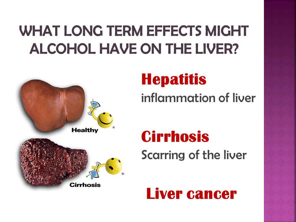Hepatitis inflammation of liver Cirrhosis Scarring of the liver Liver cancer
