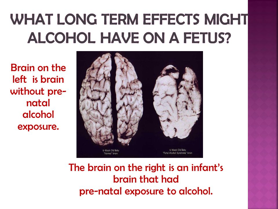 Brain on the left is brain without pre- natal alcohol exposure.